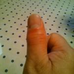大きく割れた親指の骨が!